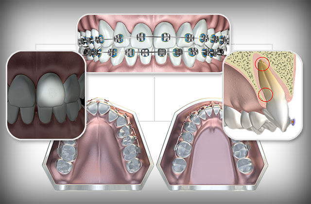 Braces and Extractions